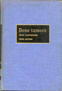 Bone Tumor Classification | RM.